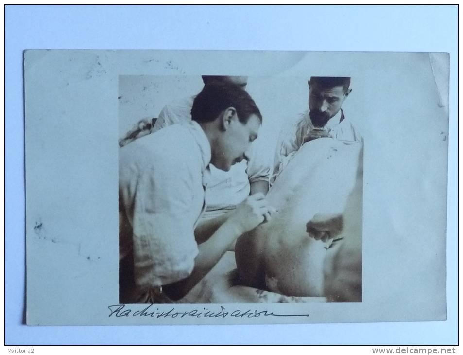 TRES RARE - CPA Sur Une Intervention Sur Le RACHIS ( Carte Photo).1909 - Salute