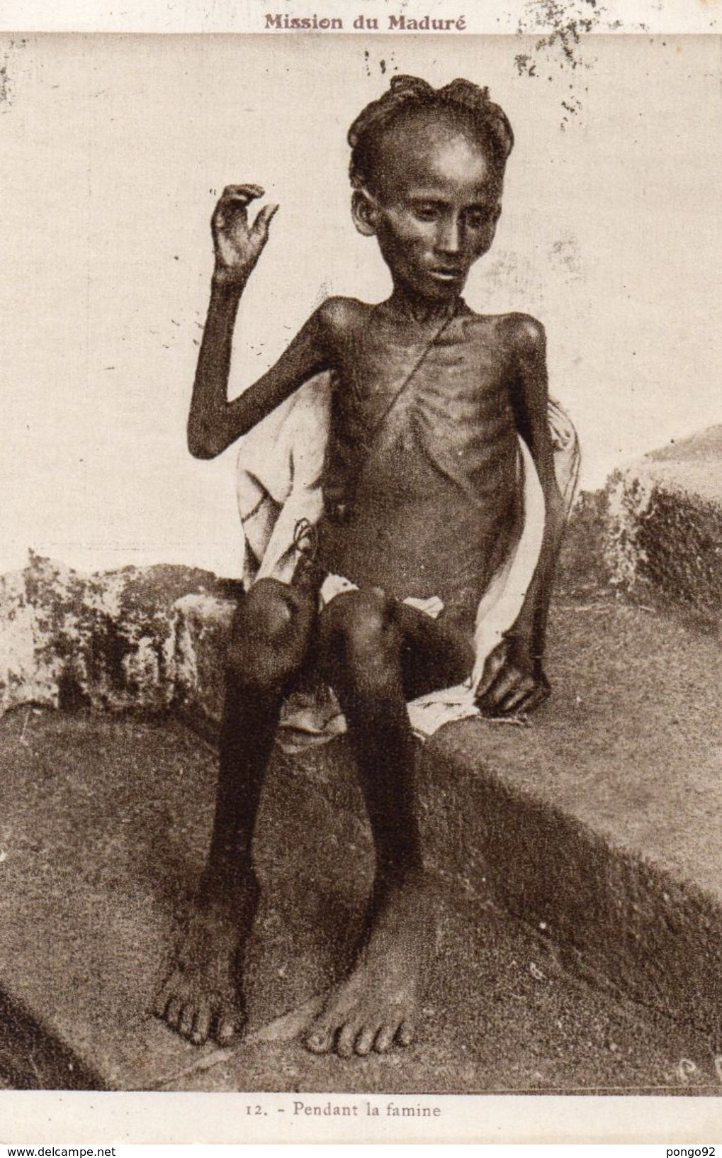 Cpa 1931, Mission Du Maduré, Un Jeune Homme Squelettique Pendant La Famine  (49.74) - Inde
