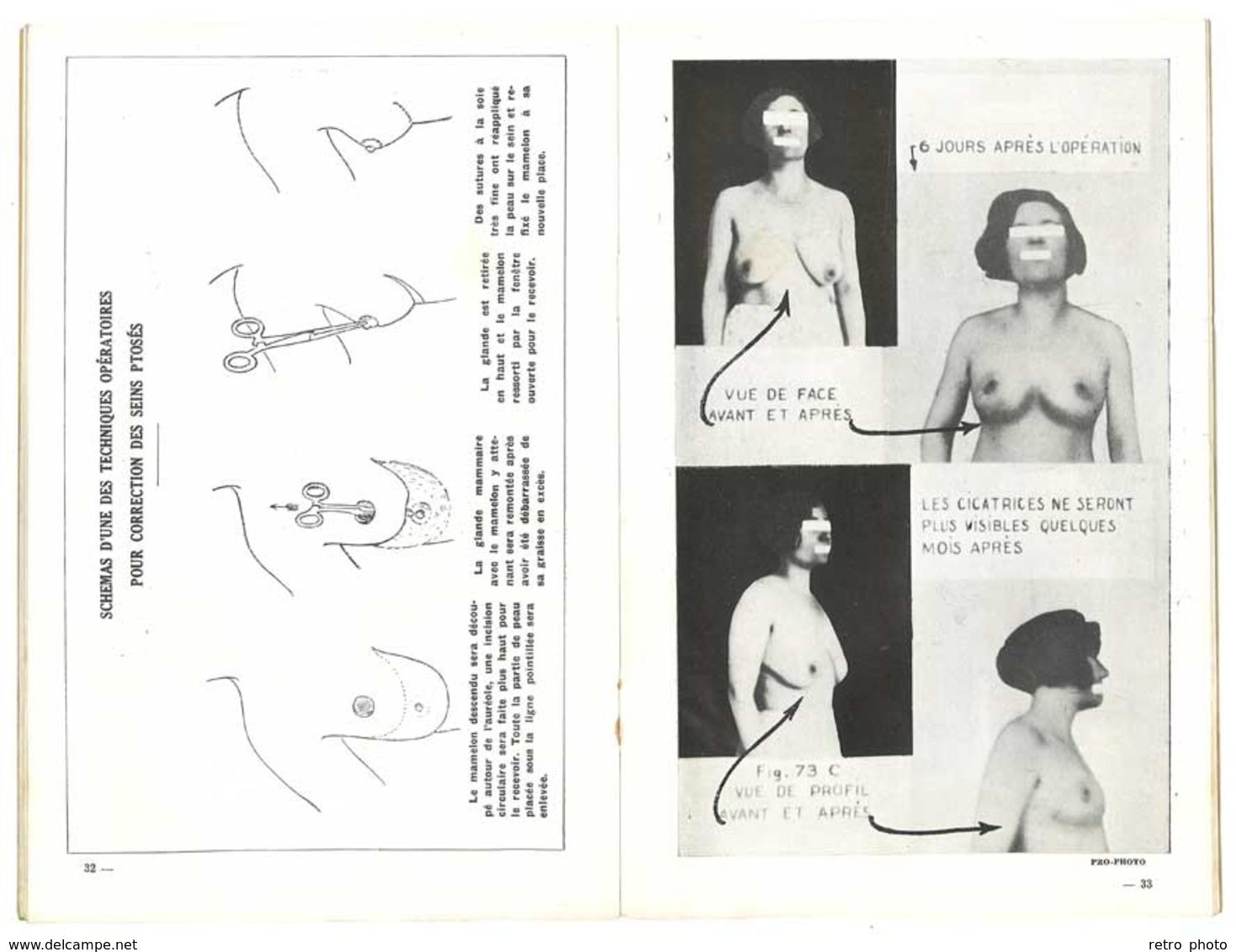 Livre : La Chirurgie Esthétique Et Ses Résultats Par Le Docteur E. Bourgoin ( Exerçait à Marseille ) - Livres, BD, Revues