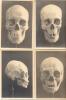 RARA COLECCION DE 7 FOTOGRAFIAS DE CRANEOS SKULLS QUE PERTENECIERA A UN ANTROPOLOGO ARGENTINO CIRCA 1910 RARES - Health
