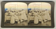 Japan (~1900´s) Amputating The Leg - Operation - Military Reserve Hospital (´Perfec´ Stereograph - H.C. White) - Stereoscoop