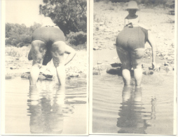 CELULITIS - IMPRESIONANTE 2 FOTOS AÑO 1958 - IMPRESSIVE TBE BUENOS AIRES ARGENTINA - Anonymous Persons
