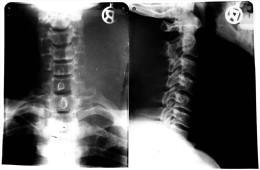 2 Original Kunststoff Röntgenbilder Von Einem Halswirbel  -  Von 1974    (190) - Ohne Zuordnung