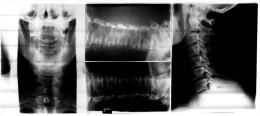 3 Original Kunststoff Röntgenbilder Von Einem Halswirbel  -  Von 1982    (191) - Ohne Zuordnung