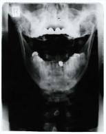 Original Kunststoff Röntgenbild Von Einem Kopf ( Unterseite )  -  Von 1985    (200) - Ohne Zuordnung