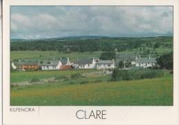 Clare Kilfennora - Ireland