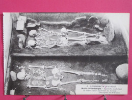 CPA Très Peu Courante - 29 - Penmarch - Musée Préhistorique - Squelette Néolithique Et Ciste à 2 Squelettes - Scans R/V - Penmarch