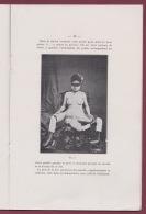 290716 - Revue Médecine BORDEAUX 1912 Dr BAUDRIMONT A - PYGOMELIE CHEZ L'HOMME - Malformation Anomalie Phenomene Monstre - Bücher, Zeitschriften, Comics