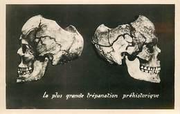 PIE-T-16-5353 : PENMARC H  MUSEE PREHISTORIQUE NECROPLE DE SAINT URNEL EN PLOMEUR   CRANE TREPANE - Penmarch