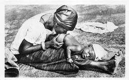 ¤¤  -  2   -  NIGER   -   Bébé Recevant Un Lavement   -   ¤¤ - Niger