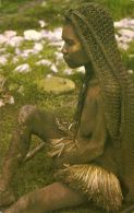 New Guinea, Old Native PAPUA Woman NUDE, Yaws Infection (1960s) Mission - Papua New Guinea