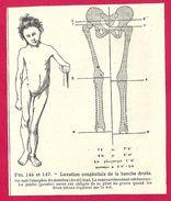 Luxation Congénitale De La Hanche Droite Larousse Médical Illustré 1929 - Old Paper