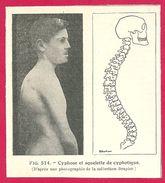 Cyphose Et Squelette De Cyphotique  Larousse Médical Illustré 1929 - Vieux Papiers