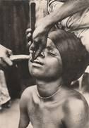 "Benin ( Dahomey ) - Carte Publicitaire Pharmaceutique  "" La Taille Des Dents "" - Scan Recto-verso - Benin"