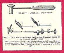 Extraction Des Corps étrangers De La Vessie  Larousse Médical 1929 - Vieux Papiers