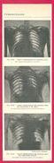 Tuberculose Aspect Radiographique  Larousse Médical 1929 - Vieux Papiers