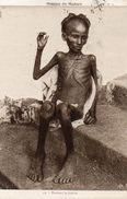 Cpa 1931, Mission Du Maduré, Un Jeune Homme Squelettique Pendant La Famine  (49.74) - India