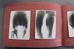 Album Fotografico Didattico -  21 Radiografie Malattie Ossa - Medicina Anni '50 - Foto