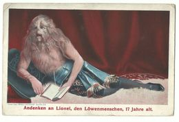 Lionel Der Löwenmensch 17 Jahre Alt Um 1910 - Entertainers
