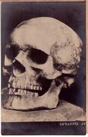 Old Russian Postcard 1920 Shubert Skull - Photographs