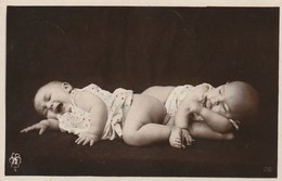 THEME ENFANCE  SANTE   -  FRERES SIAMOIS - Enfants