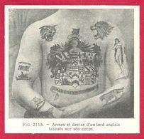 Tatouage, Armes Et Devise D'un Lord Anglais Tatoués Sur Son Corps, Larousse Médical De 1934 - Autres