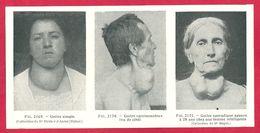 Goitre, Larousse Médical De 1934 - Other