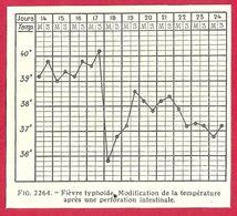 Fièvre Typhoïde, Modification De La Température Après Une Perforation Intestinale,  Larousse Médical 1929 - Other