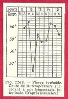 Fièvre Typhoïde, Chute De La Température Succédant à Une Hémorragie Intestinale D'après Dieulafoy, Larousse Médical 1929 - Other
