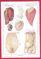 Viandes Malsaines, Tuberculose Aviaire, Tuberculose Du Bœuf, Illustration Nicolet, Larousse Médical 1934 - Vieux Papiers