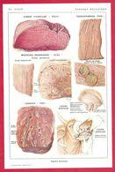 Viandes Malsaines, Bœuf, Veau, Porc, Illustration Nicolet, Larousse Médical 1934 - Other