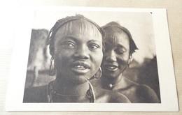 Tchad - Scarification - Femmes Sara De Fort Archambault - Tchad