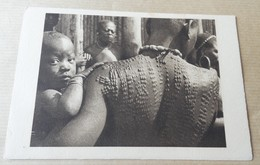 Scarification - Cameroun - Tatouage En Relief - Cameroun