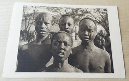 Tchad - Scarification - Types De Sara De Fort Archambault - Tchad