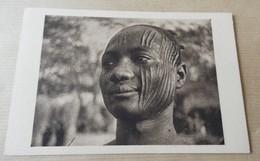 Tchad - Scarification - Un Sara De Fort Archambault Le Nombre De Cicatrices Indique La Tribu - Tchad