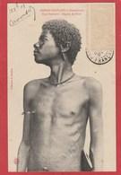 CPA: Congo Français - Type Bakamba - Région Du Niari - Scarifications (Editeur Audema) - Congo Francese - Altri
