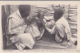 ABYSSINIE/Remèdes: Abcès Dans La Gorge......./ Réf:fm874 - Ethiopie