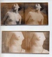 REF 345:  Photo Stéréoscopique 12,5 X 6 Cm Nu Féminin Erotisme Seins Nus Nude Lot De 2 - Photos Stéréoscopiques