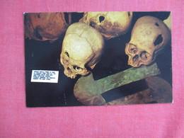 Trephined Peruvian Skulls    Ref 3123 - Peru