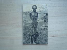 1912 CONGO FRANCAIS FEMME AVEC LE MALADIE DU SOMMEIL  CIRCULÉE DOS DIVISE  ETAT CORRECT PLI COIN INF GAUCHE - Congo Français - Autres