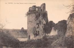 56 - ELVEN - Le Vieux Donjon Avant Sa Restauration - Elven