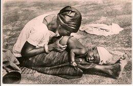 L200A581 - Bébé Recevant Un Lavement Au Piment - Collection Labitte N°2 - Niger