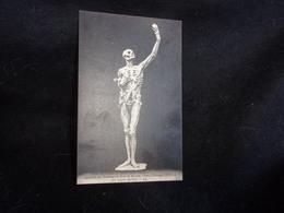 Arts .Bar - Le - Duc. Squelette Du Tombeau De René De Nassau , Prince D ' Orange . Voir 2 Scans . - Arts