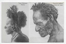 Type De Canaque - Native - Papouasie-Nouvelle-Guinée