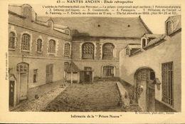 """Nantes Ancien  CPA """"Etude Rétrospective N° 63 Infirmerie De La Prison Neuve"""" - Nantes"""