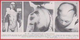 Effets Provoqués Par La Bombe Atomique. Larousse Médical De 1974 - Autres