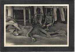 CPA Zagoursky Photographe Afrique Noire Maladie Santé Non Circulé Maladie Du Sommeil - Fotografía