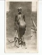 SOUDAN ELEPHANTIASIS DU SEIN   ****585 - Soudan