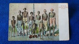 Group Of Famine-Stricken Victims India - India