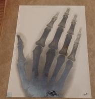 ANCIENT Photographie Montrant Une Radiographie De La Main, 125X165MM - Personas Anónimos
